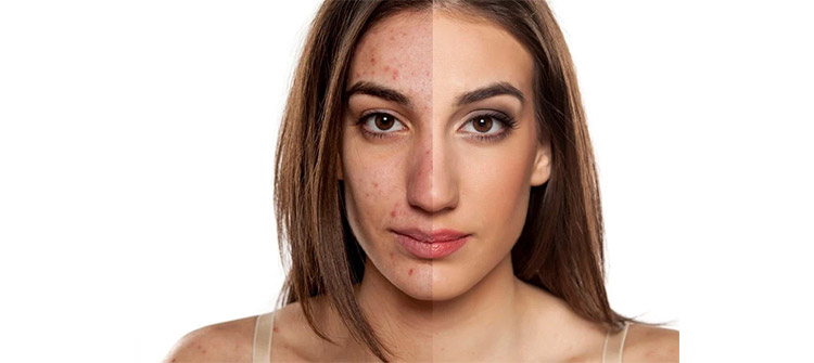 How to get rid of acne scars by majestic salon spa goa